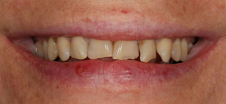 Porcelain Veneers Beverly Hills