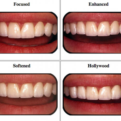 How to Choose the Best Veneers for Your Face Shape - Dominant Catalog