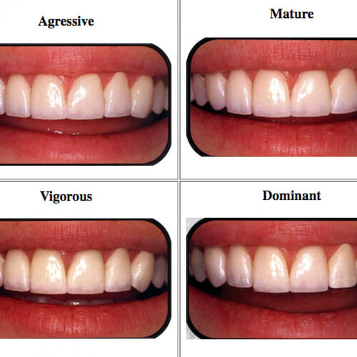 How to Choose the Best Veneers for Your Face Shape - LVI Smile Catalog