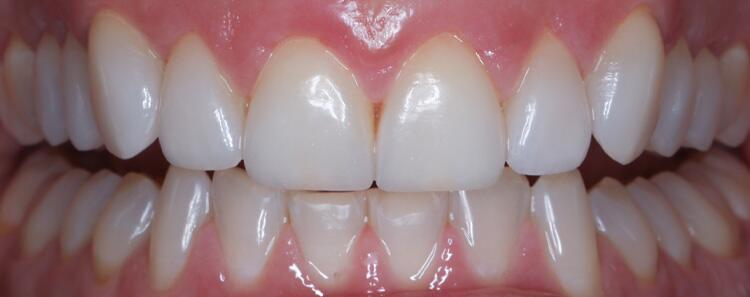 Tooth Restoration Before & After Photo