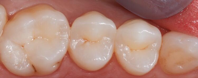 Anterior Crowns Before & After Photo